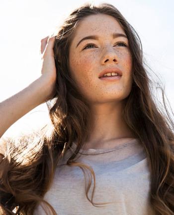 Лунички и слънчево изгаряне:как да защитите кожата си